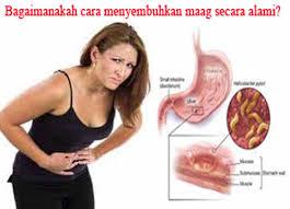 Obat Alami Penyembuh Maag Kronis
